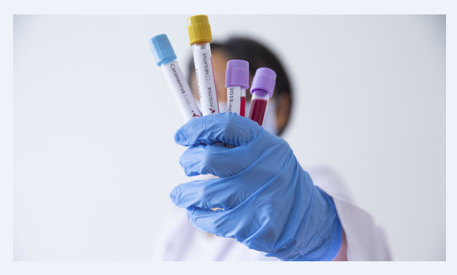 В Бердичеві та Малині виявили випадки коронавірусу